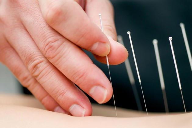 Photo: One interesting therapy that Nibali and his Astana team-mates have recently implemented is acupuncture.